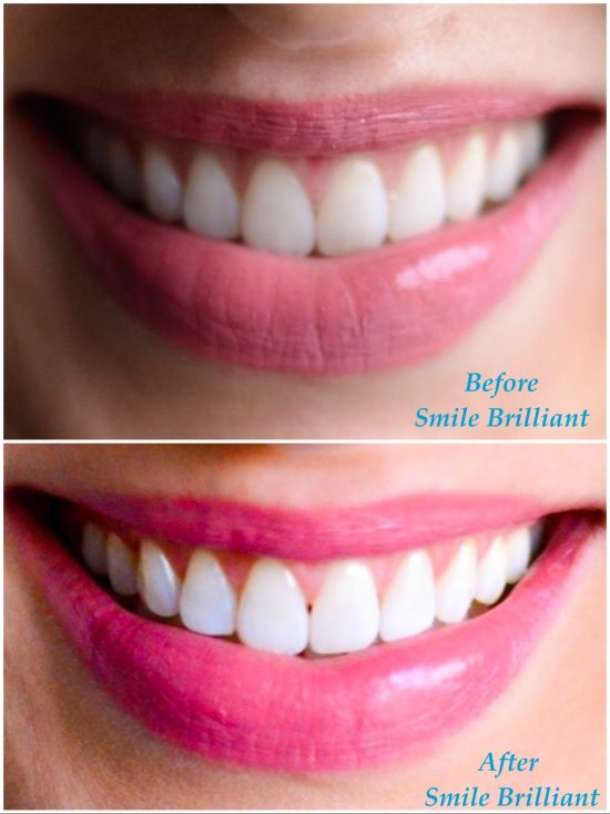 The best at-home teeth whitening kit- smile brilliant